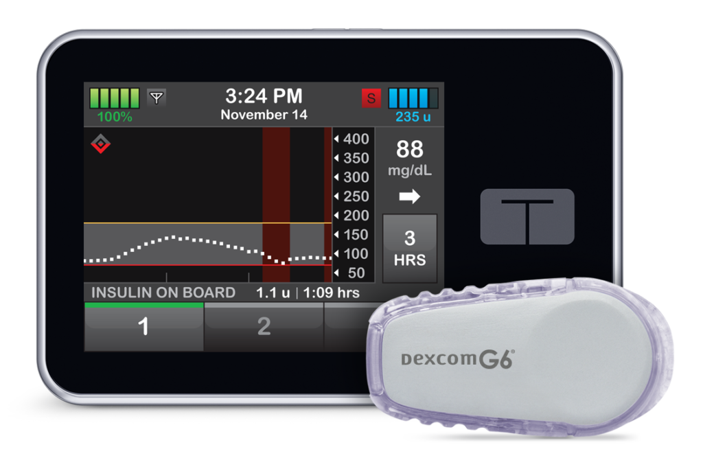tslim X2 Insulin Pump Front View With Dexcom G6