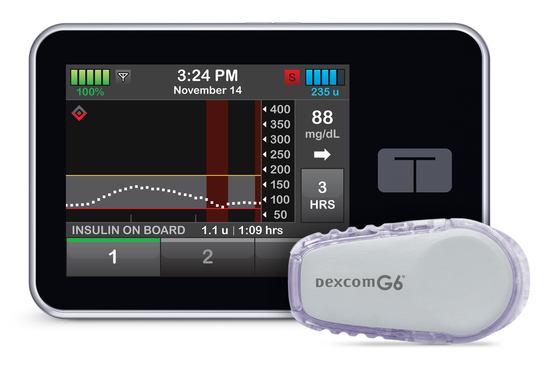 What's an Insulin Pump?